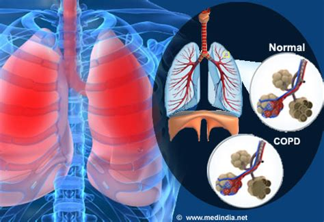 Diet for Obstructive Lung Disease - Slideshow