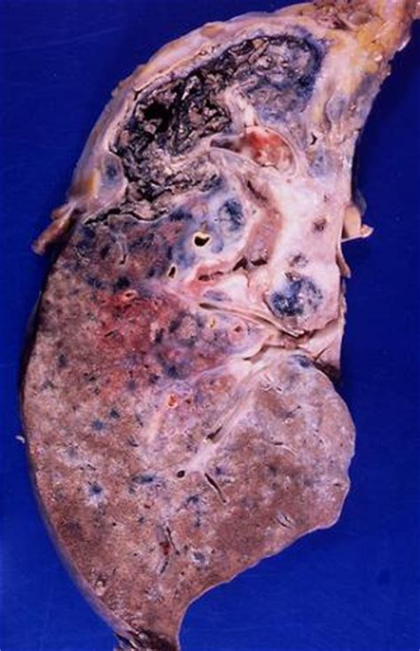 Complications of sarcoidosis   General center