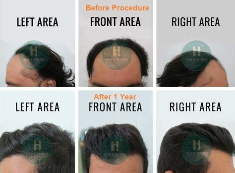 How much does it cost to get hair transplant in India? - Quora