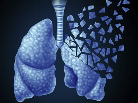 Natural help for asthma - Easy Health Options®