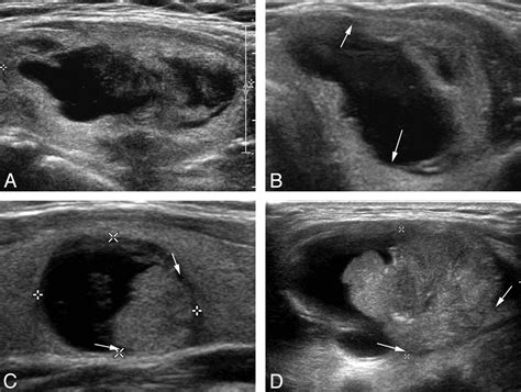 Sonographic Differentiation of Partially Cystic Thyroid