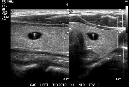 Inspissated colloid in a thyroid nodule | Image
