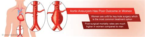 Women With Aortic Aneurysm Have Poor Prognosis Compared to Men